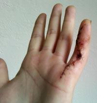 Dupuytren-Narbe am linken kleinen Finger